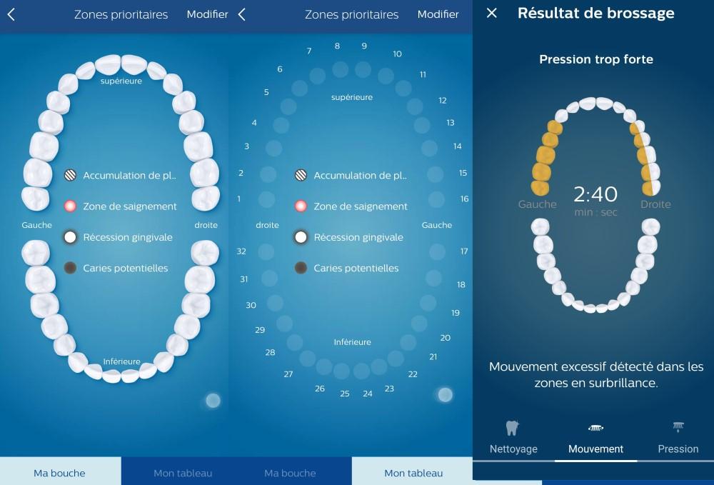 application Brosse à dents électrique Philips Prestige de Sonicare